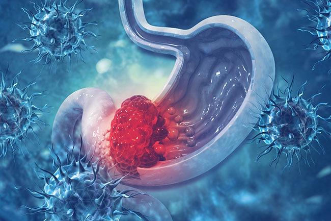 cancer gastrico peritoneal)